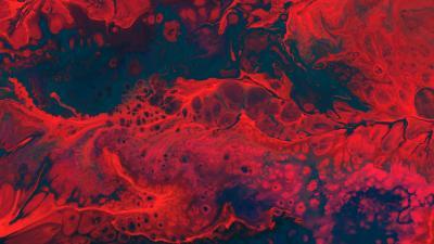 Manque ou carence en fer et anémie ferriprive
